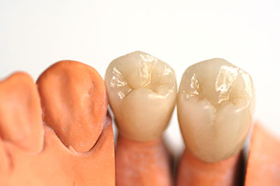 "Dental Crowns or ""Caps"""